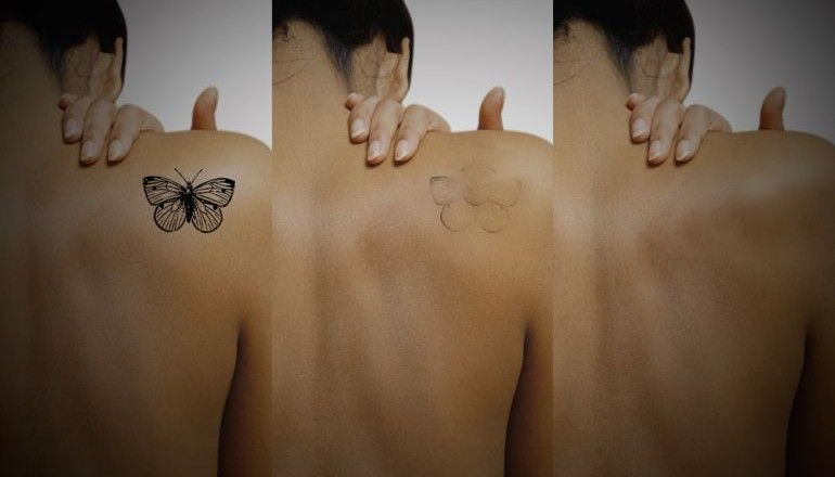 Park Art My WordPress Blog_Laser Ear Hair Removal Cost In India