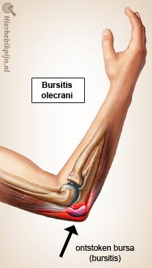 Weichteilverletzungen