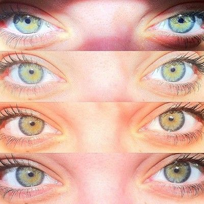 I Was Born I Have A Rare Eye Color Story Experience Rare