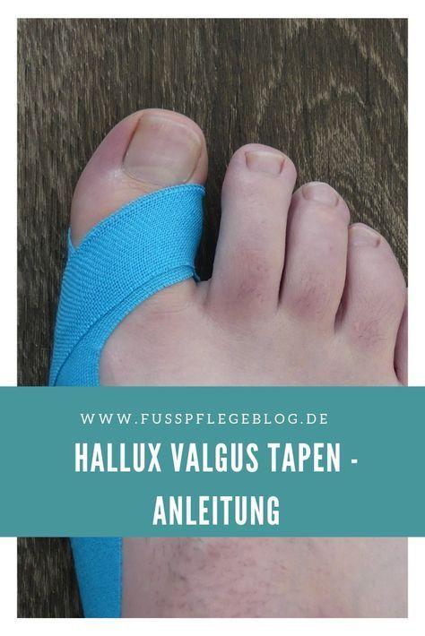 Hallux Valgus aufnehmen   - Health and fitness - #aufnehmen #fitness #Hallux #Health #Valgus