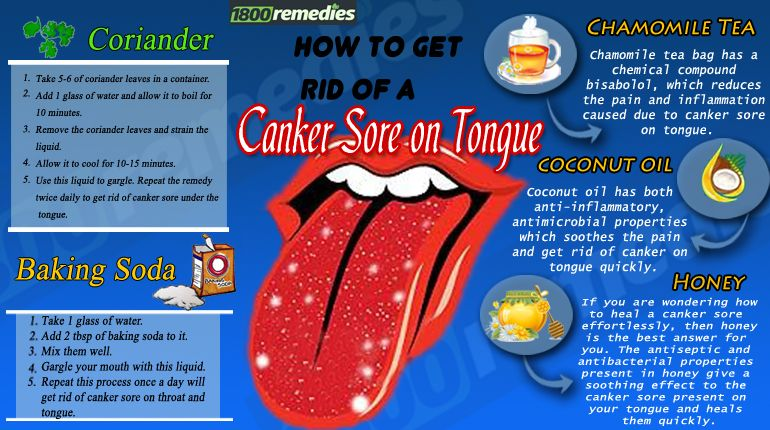 how to treat cold sores on tongue