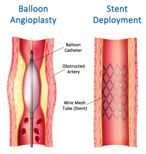 pin by the vein and vascular institute of spring hill on carotid