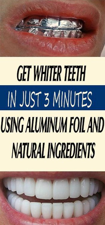How to get whiten teeth without using baking soda and foil