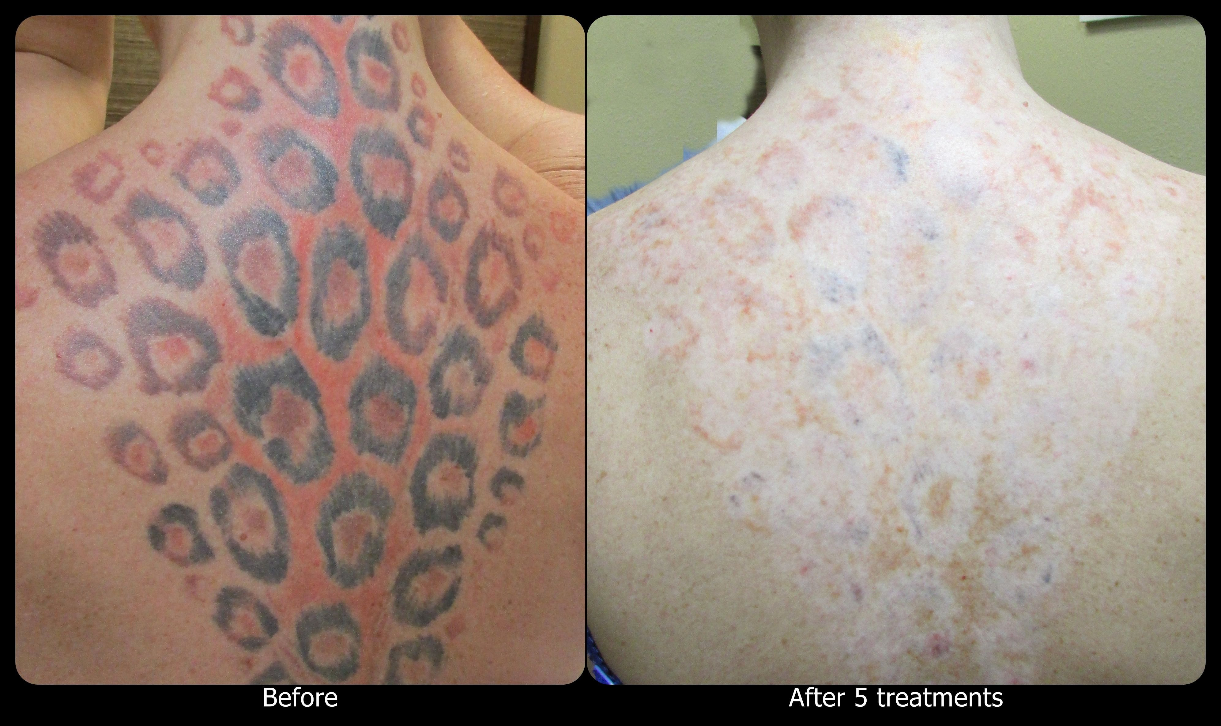 How Many Treatments For Laser Tattoo Removal Fresh This Client Is An Avid Tanner The Laser Used For The In 2020 Tattoo Removal Laser Tattoo Tattoo Removal Prices