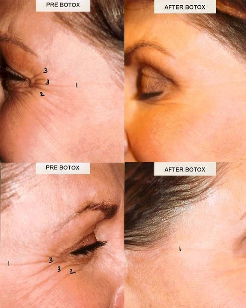 These Skin Care Tips Will Make Your Skin Happy Botox Injections