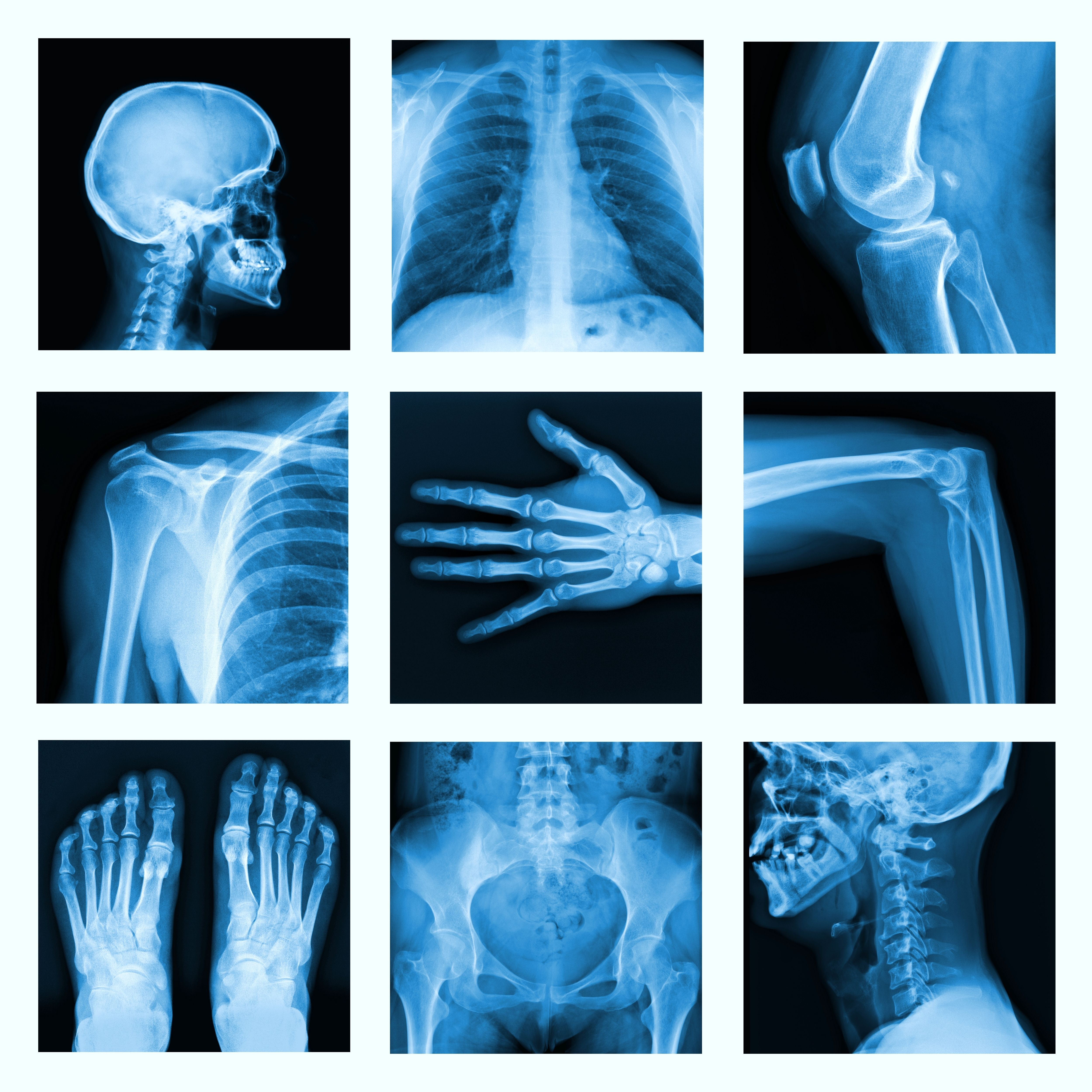 All Part Of Human Bone X Ray A New Approach To Bone