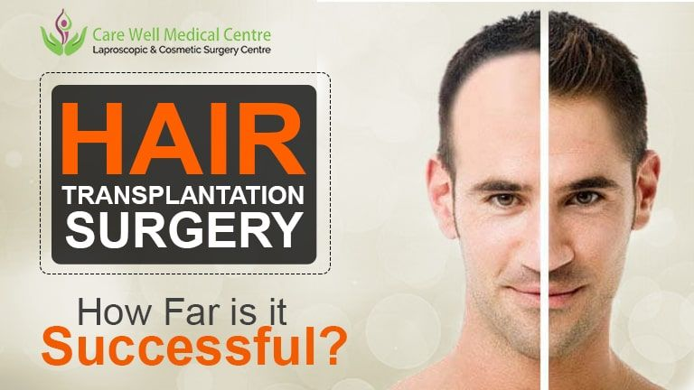 Hair Transplantation Surgery How Far Is It In 2020 Cosmetic Surgery Hair Success