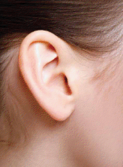 #Otoplasty (#Ear_Surgery) Without Incision  Cihantimur M.D. is offering the incisionless #otoplasty to correct prominent, large, or malformed ears, suitable for children, teens and adults. An outpatient procedure, with recovery reduced to only a few days, at most.