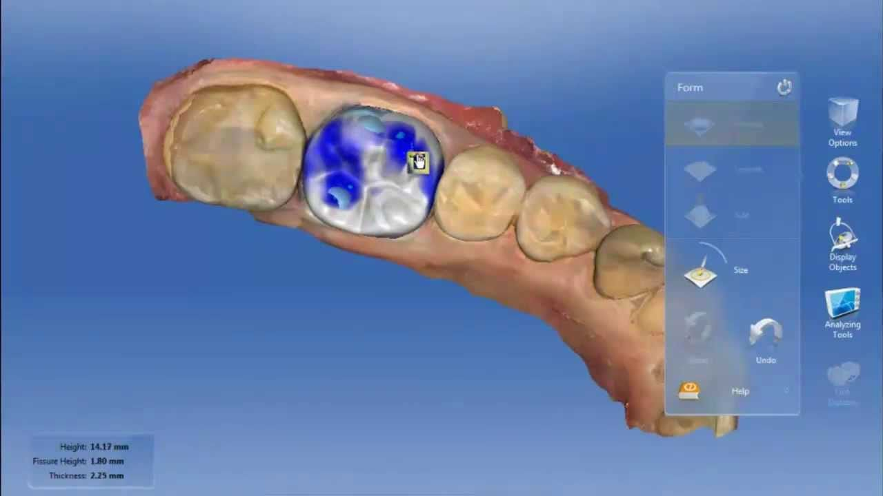 Cerec omnicam cutout occlusion case dentistry case cutout