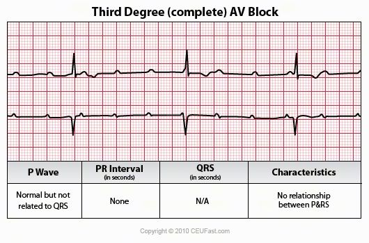 Evaulating heart blocks arrythmia diagram ecg interpretation evaulating heart blocks arrythmia diagram ecg interpretation course nursing continuing education ce ccuart Image collections