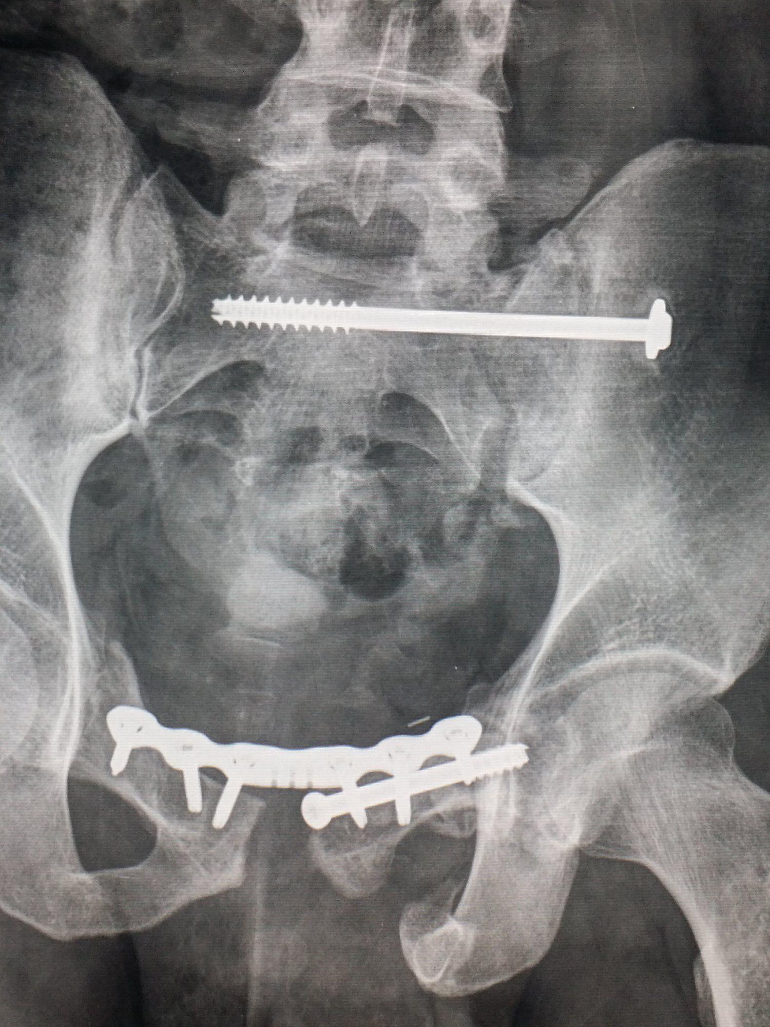Pelvic #xray shows #orthopedic #hardware used to fix multiple ...