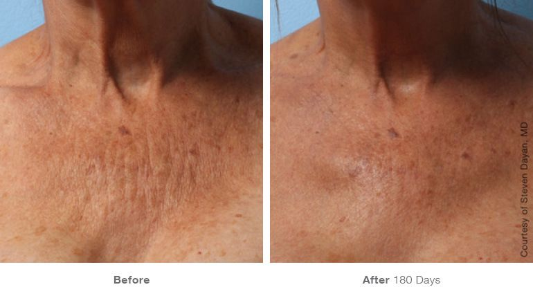 Before After Ultherapy Anti Ageing Routine Ultherapy Before