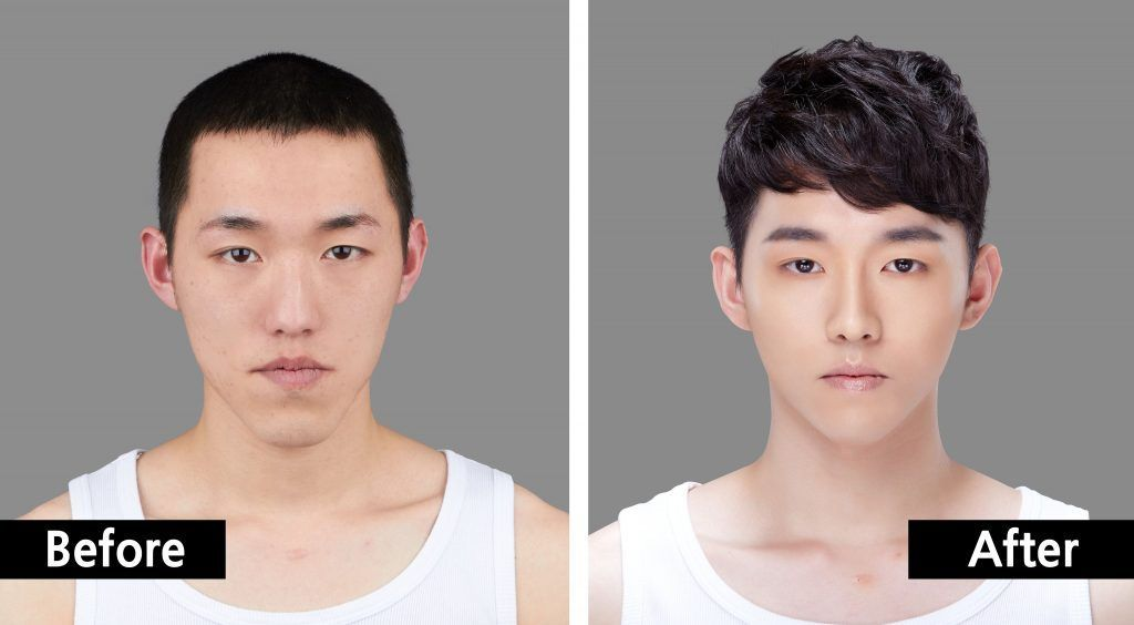 Korean Man Face Plastic Surgery Chin And Nose Before And After Combinationskincare Face Plastic Surgery Plastic Surgery Face Surgery