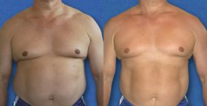 excess fat after weight loss surgery