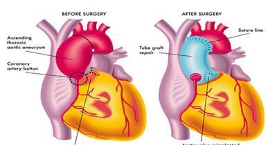 إصلاح تمدد الأوعية الدموية الأبهري أفضل المستشفيات والأطباء وتكلفة الهند Coronary Arteries Medical Illustration Aortic Aneurysm