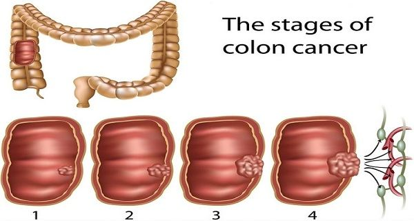 The Early Warning Signs Of Colon Cancer You Should Never Ignore And How To Prevent It Healthy Food Plans Physiology Health El Cancer Sintomas Del Canc