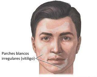 manchas blancas en la cara vitiligo