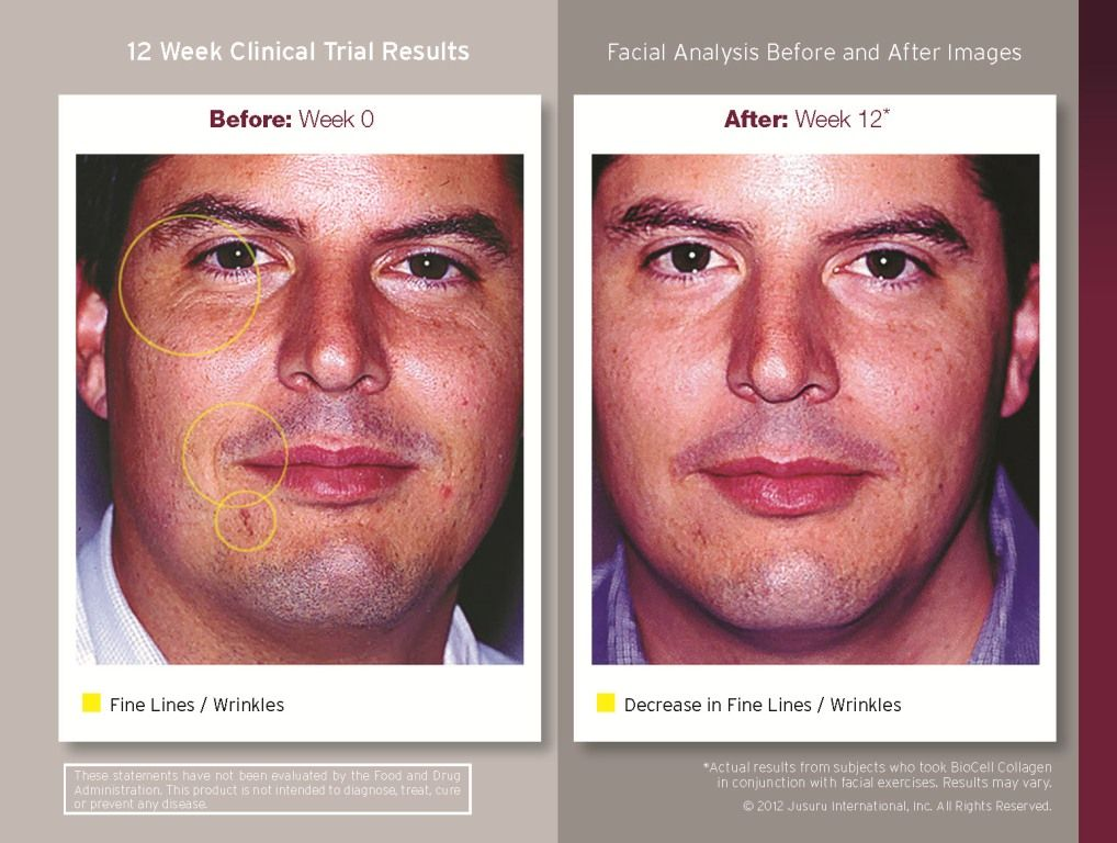 b0313baeed before and after Liquid BioCell Collagen use for 90 days!! TAKE THE TRIAL!!