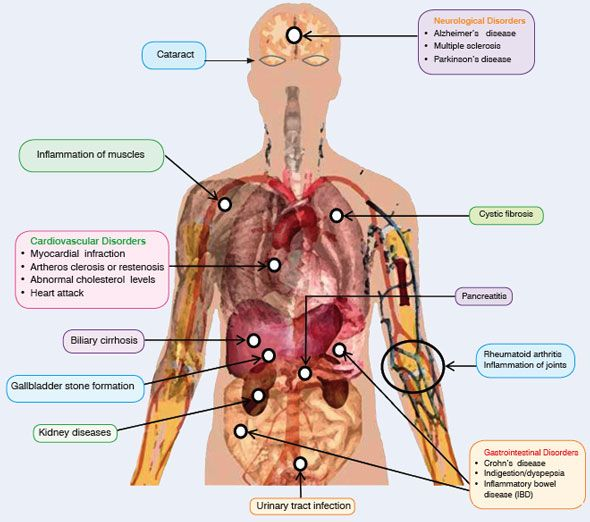 Human anatomy and potential of curcumin as a therapeutic agent to prevent or treat various diseases