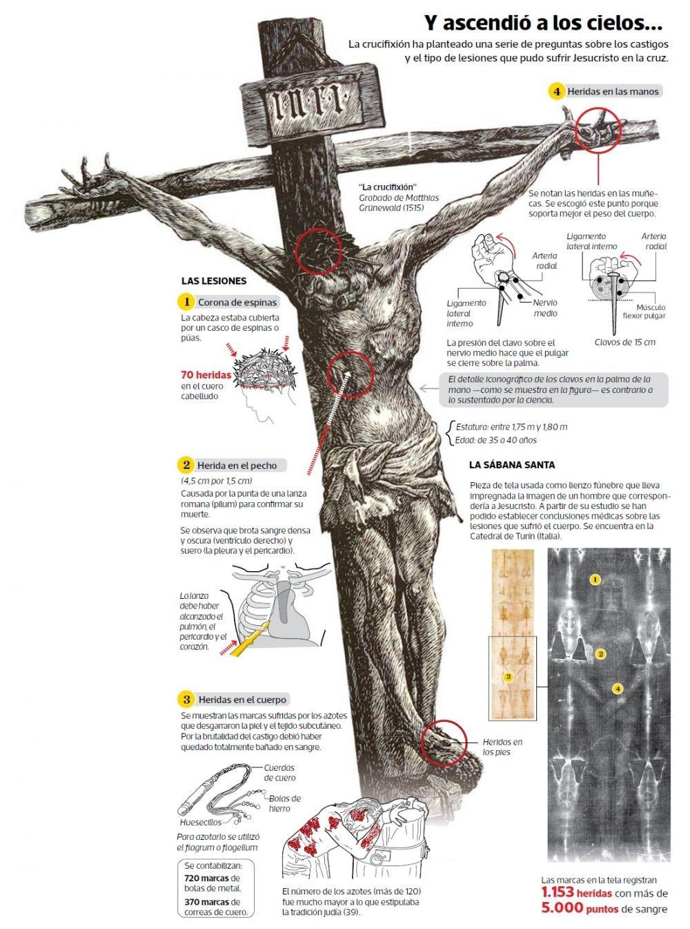 Radiografia De Una Crucifixion Crucifixion De Jesus Imperio