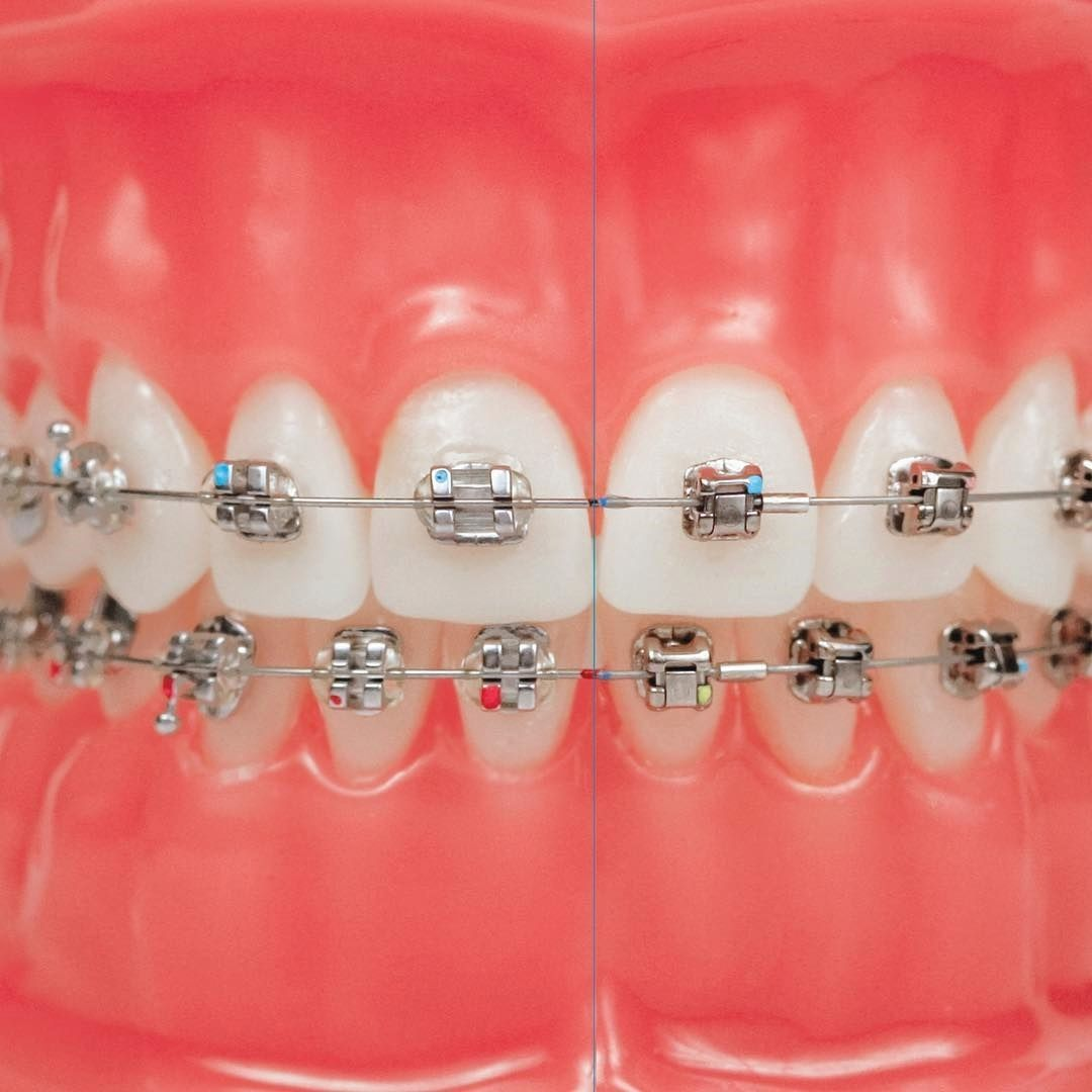 Getting braces as an adult can be stressful. Check out the