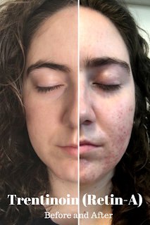Tretinoin Retin A Before And After Acne Before And After