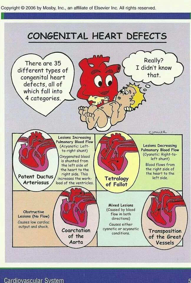 Congenital heart defects and CCHD