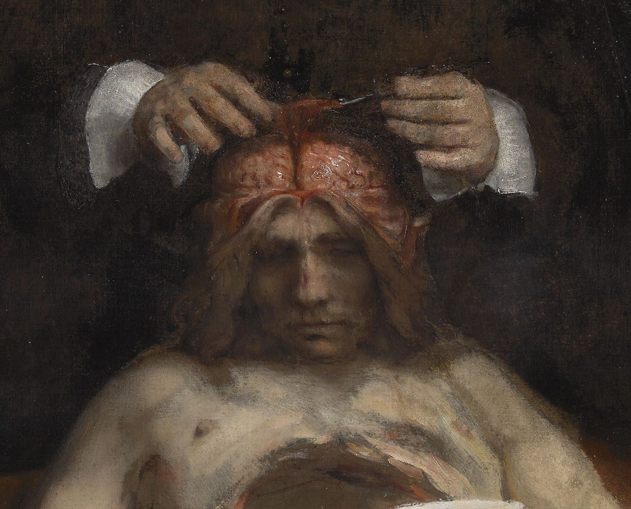 "achasma: ""The Anatomy Lesson of Dr. Jan Deyman (detail) by Rembrandt ..."