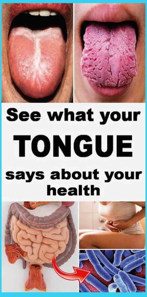 What Your Tongue Says About Your Health In Ayurved