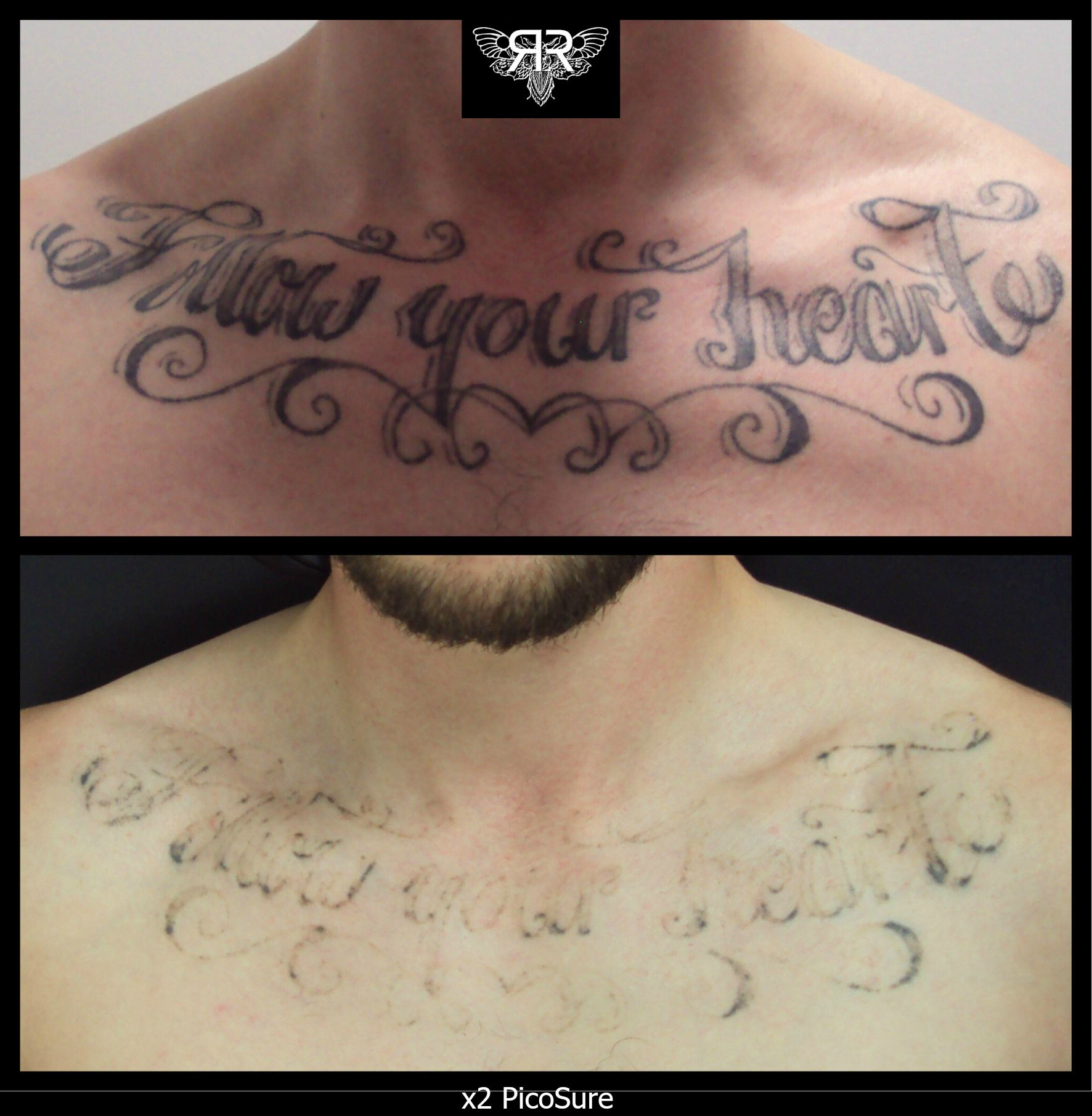 X2 picosure sessions getting there work pinterest for Picosure tattoo removal maryland