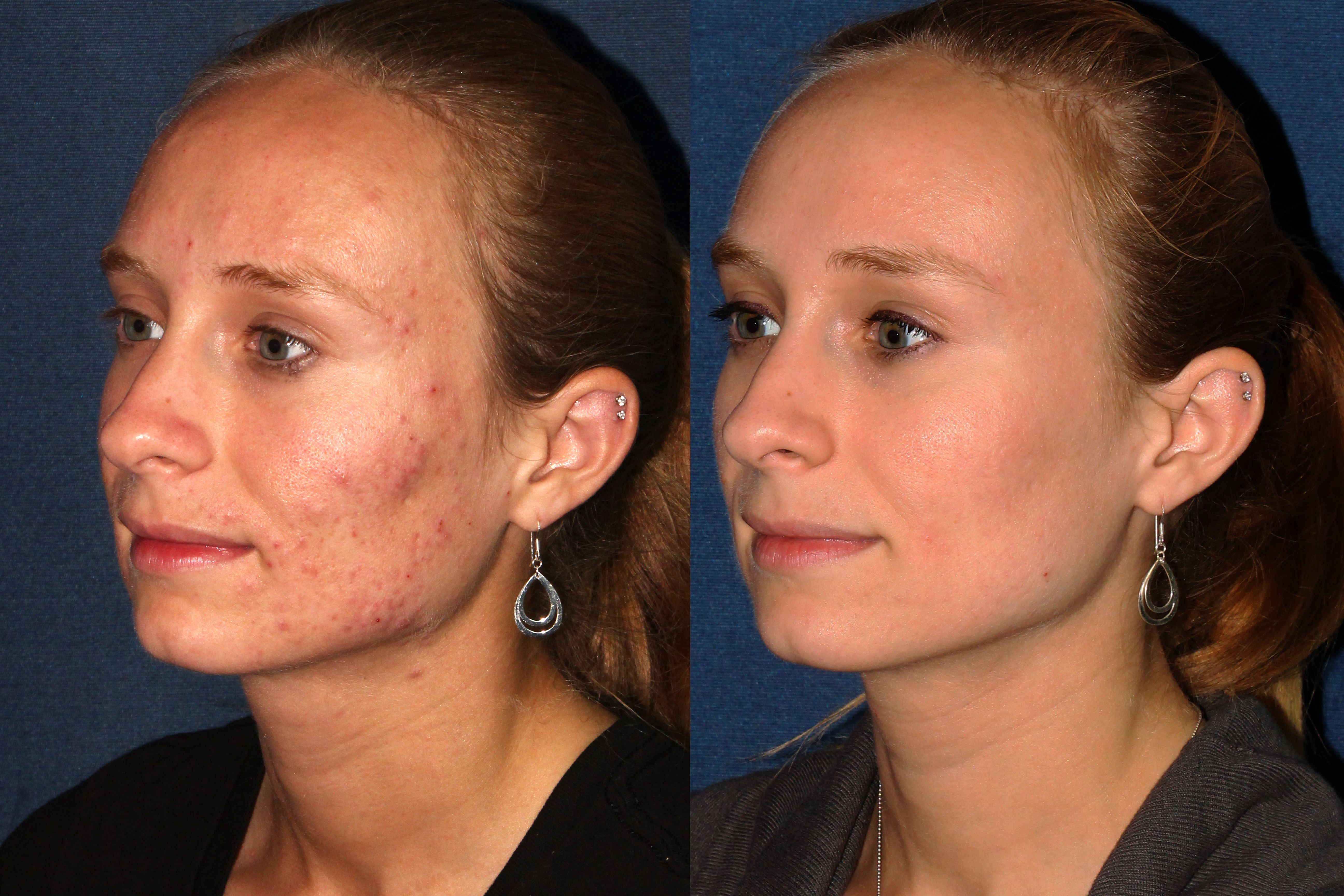 Before and After Photodynamic Therapy by Dr. Fabi at