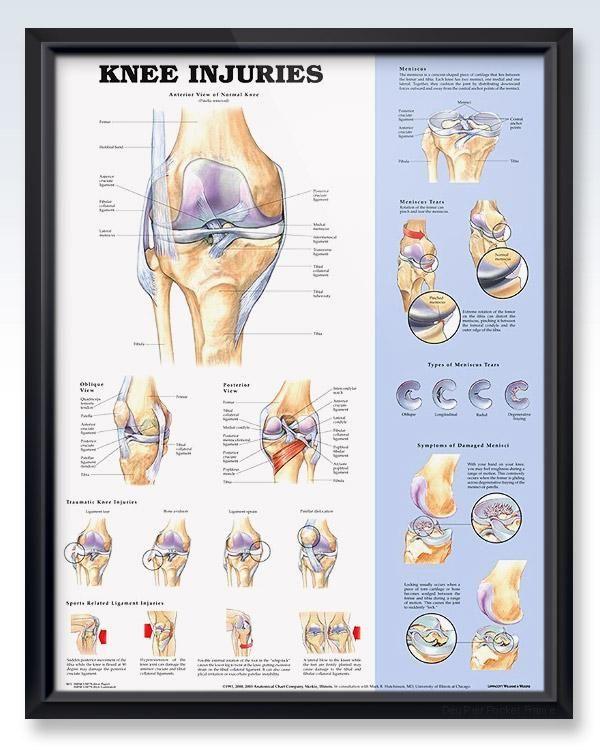 Knee Injuries 20x26 | Knee injury, Medical and Arthritis