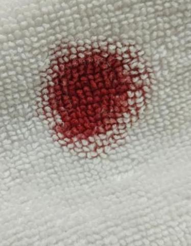Comment enlever une tache de sang ancienne