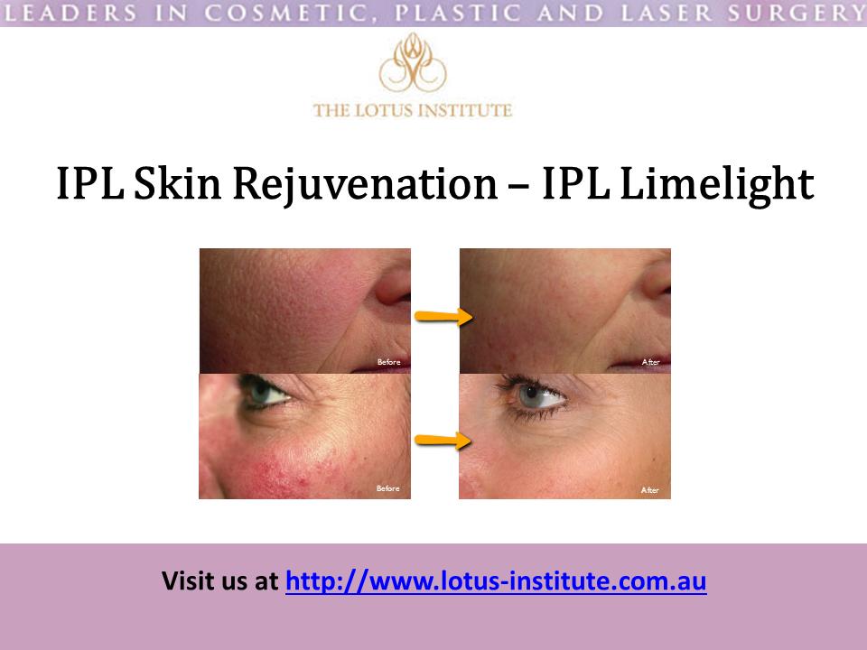 Ipl Skin Rejuvenation Treatments Ipl Limelight Laser Genesis Http Skinrejuvenationtreatment Com Au Ipl Treat Skin Rejuvenation Ipl Treatment In Cosmetics