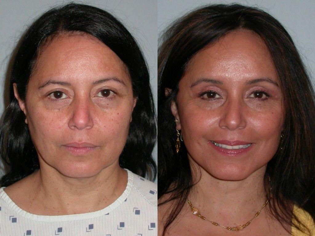Carmichael Eyelid Surgery and nonsurgical procedures to
