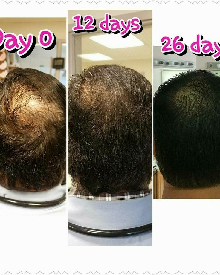 Pin by Karen Holzer on Monat before/after Hair care