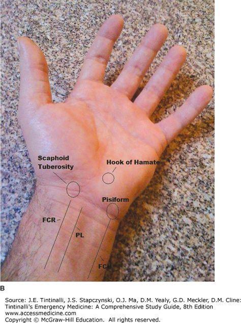 Pin de rhonda hampton en OT education | Pinterest | Anatomía ...