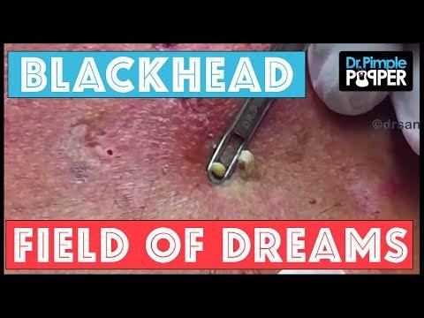 Blackhead Field of Dreams: Supercomedones & Dilated Pores of Winer