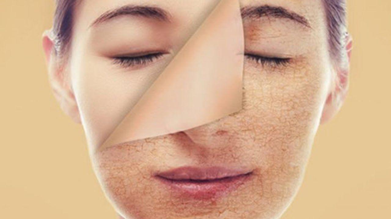 Dễ Dang Chữa Da Mặt Kho Bong Troc Ngay Tại Nha Cho Lan Da đẹp Mịn Mang Oil For Dry Skin Dry Skin On Face Patchy Skin
