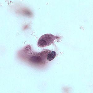 trofozoito trichomona