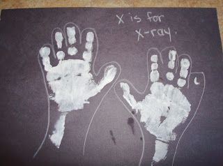 Reformed Ragamuffin Kids X Is For X Ray Doctor Theme Preschool
