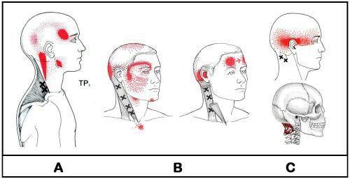 hoofdpijnklachten? grote kans dat het uit de spieren van je nek komt. Daar kunnen spierknopen zitten (triggerpoint) die uitstralende pijn kunnen geven naar je hoofd.