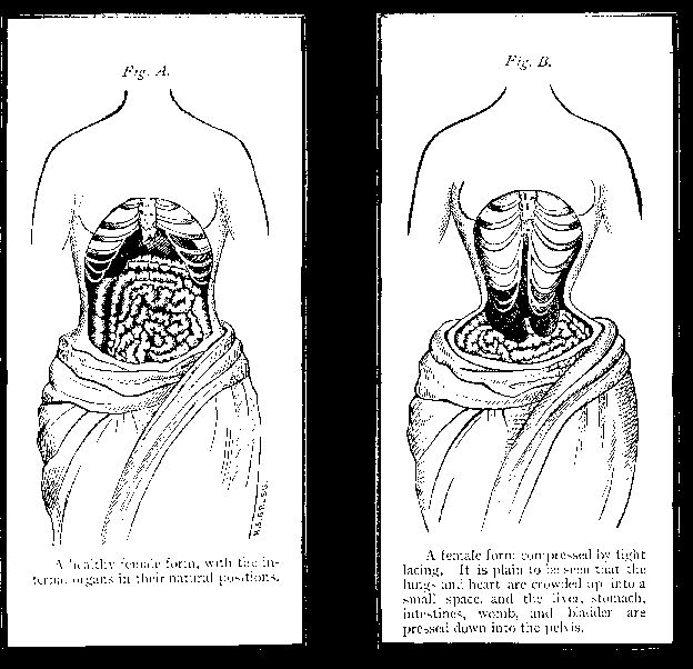 The wearing of corsets started a long time ago. Women wore