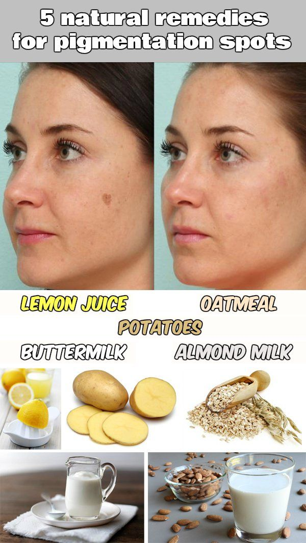 Read and learn 5 natural remedies for pigmentation spots.