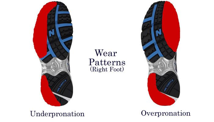 Can Overpronators Wear Neutral Shoes