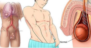 Atención: Síntomas del cáncer testicular que NO debes pasar por ...