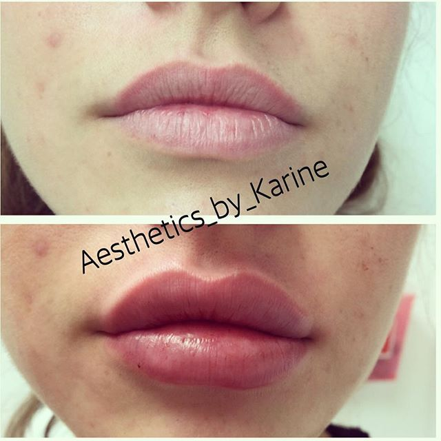 Before|After Used 1 syringe of Juvederm Ultra Plus XC… | Lips | Lip