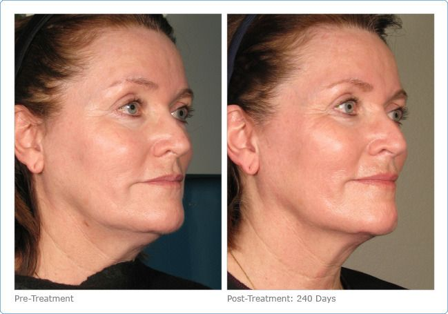 A Nonsurgical Way To Lift Tighten And Tone Skin Ultherapy Nonsurgical Skin Tightening Ultherapy Before And After