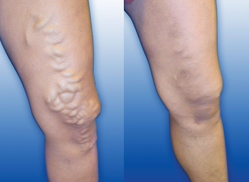 How To Protect Varicose Veins Varicose Veins Varicose Veins Treatment Laser Treatment
