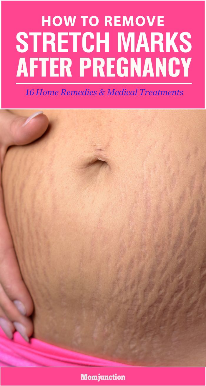2317d4d1d4 Here are 16 simple and effective home remedies along with medical  treatments…